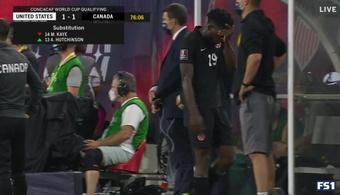 ¿Lesión importante? La imagen de Davies que preocupa al Bayern. Twitter/ESPNFC
