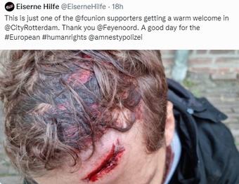 Hubo aficionados heridos. Captura/Twitter/EiserneHilfe