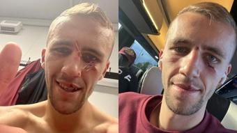 Soucek sigue coleccionando heridas de guerra en su cara. Twitter/TomasSoucek